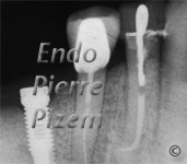 Dental operating microscope (D.O.M.), D.O.M. versus partially calcified systems, Root Canal Treatment Post-Therapy 03-1