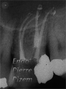 Dental operating microscope (D.O.M.), Striving for Second Mesio Vestibular (MB2), Root Canal Treatment Post-Therapy 12-1