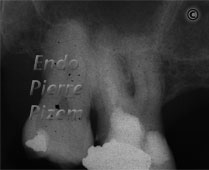 Surgical removal of tooth structure, Tooth sectioning, Root Canal Treatment Pre-Therapy 02-1