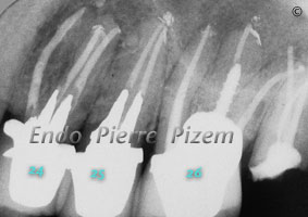 Dental operating microscope (D.O.M.), D.O.M. versus completely calcified systems, Root Canal Treatment Post-Therapy 1-1