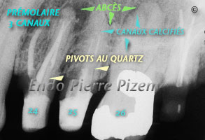 Dental operating microscope (D.O.M.), D.O.M. versus completely calcified systems, Root Canal Treatment Pre-Therapy 1-1