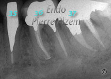 Dental operating microscope (D.O.M.), D.O.M. versus partially calcified systems, Root Canal Treatment Post-Therapy 02-1