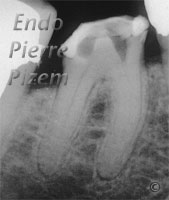 Dental operating microscope (D.O.M.), D.O.M. versus completely calcified systems, Root Canal Treatment Per-Therapy (2)
