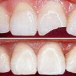 Restauration cosmétique dentaire