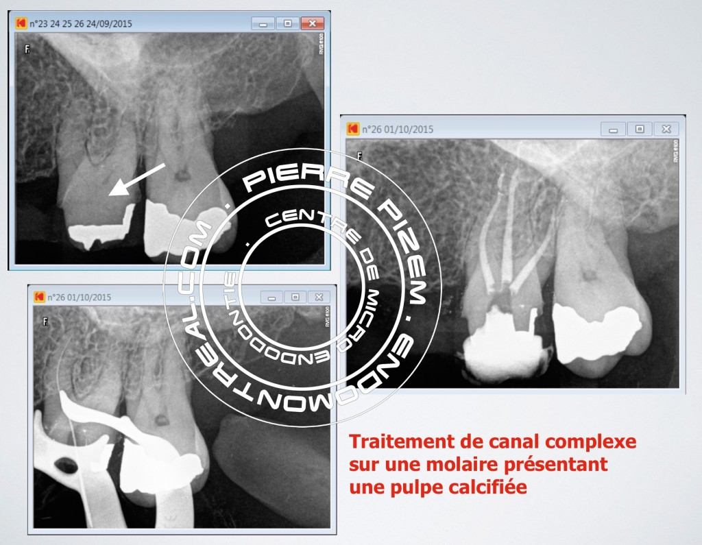 Traitement de canal microchirurgical
