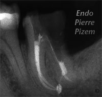 Atypical canal configurations, Type II, Root Canal Treatment Per-Therapy 329-1