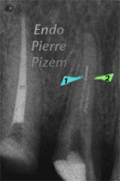 Dental operating microscope (D.O.M.), D.O.M. versus partially calcified systems, Root Canal Treatment Pre-Therapy 322-1