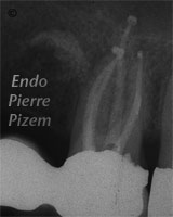 Dental operating microscope (D.O.M.), Striving for Second Mesio Vestibular (MB2), Root Canal Treatment Post-Therapy 333-1