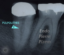 Curved Canals, Extremely curved root canals (90 degrees +), Root Canal Treatment Pre-Therapy 403-1