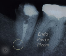Curved Canals, Extremely curved root canals (90 degrees +), Root Canal Treatment Post-Therapy 403-1