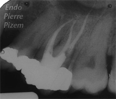 Dental operating microscope (D.O.M.), Striving for Second Mesio Vestibular (MB2), Root Canal Treatment Post-Therapy 412-1