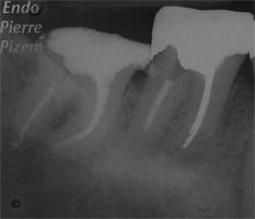 Dental operating microscope (D.O.M.), D.O.M. versus partially calcified systems, Root Canal Treatment Post-Therapy 411-1