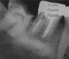 Dental operating microscope (D.O.M.), D.O.M. versus partially calcified systems, Root Canal Treatment Pre-Therapy 411-1