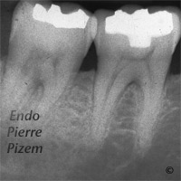 Atypical canal configurations, Type III, Root Canal Treatment Pre-Therapy 410-1