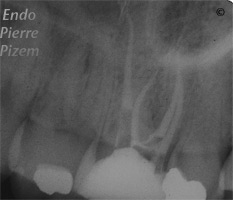 Atypical canal configurations, Root Canal Treatment Pre-Therapy 413-1