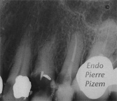 Dental operating microscope (D.O.M.), D.O.M. versus completely calcified systems, Root Canal Treatment Pre-Therapy 416-1
