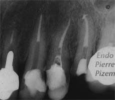 Dental operating microscope (D.O.M.), D.O.M. versus completely calcified systems, Root Canal Treatment Post-Therapy 416-1