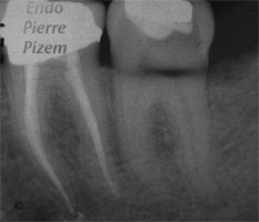 Atypical canal configurations, Type II, Root Canal Treatment Pre-Therapy 417-1