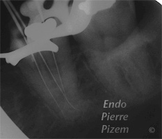Atypical canal configurations, Type II, Root Canal Treatment Per-Therapy 421-1