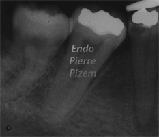 Extreme Endo Clinical Cases, Root Canal Treatment Pre-Therapy 425-1