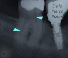 Atypical Canal Configurations, Very Long Teeth, Root Canal Treatment Pre-Therapy 401-1