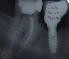 Atypical Canal Configurations, Very Long Teeth, Root Canal Treatment Post-Therapy 401-1