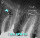 Dental Operative Microscope and Retreatment, Finding Previously Underseen MB2, Root Canal Treatment Post-Therapy 02-1
