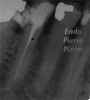 Atypical Canal Configurations, Type V, Root Canal Treatment Pre-Therapy 041340-1