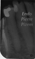 Atypical Canal Configurations, Type V, Root Canal Treatment Post-Therapy 041340-1