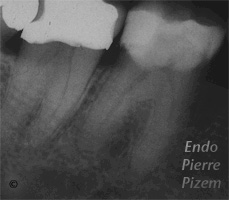 Atypical canal configurations, Type II, Root Canal Treatment Pre-Therapy 011820-1