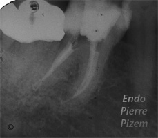 Atypical canal configurations, Type II, Root Canal Treatment Per-Therapy 011820-1