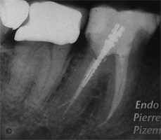 Atypical canal configurations, Type II, Root Canal Treatment Post-Therapy 011820-1