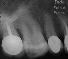 Atypical canal configurations, Type II, Root Canal Treatment Pre-Therapy 019710-1