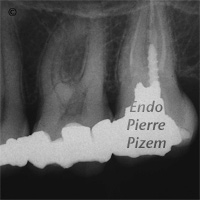 Curved Canals, Extremely curved root canals (90 degrees +), Root Canal Treatment Pre-Therapy 328426-1