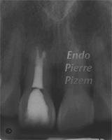 Atypical Canal Configurations, Type V, Root Canal Treatment Post-Therapy 431611-1