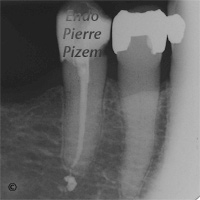 Dental operating microscope (D.O.M.), D.O.M. versus completely calcified systems, Root Canal Treatment Pre-Therapy 442192-1
