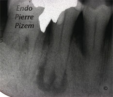 Atypical Canal Configuration, Type V, Root Canal Treatment Pre Therapy 48744-1