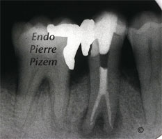 Atypical Canal Configuration, Type V, Root Canal Treatment Per Therapy 48744-2