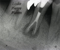 Atypical Canal Configuration, Type V, Root Canal Treatment Post Therapy 48744-1