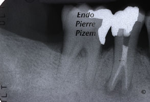 Atypical Canal Configuration, Type V, Root Canal Treatment Post Therapy 48744-2