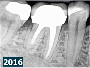 Root canal procedure and periradicular tissue healing 2016-02-21