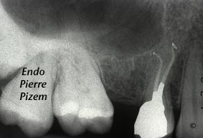 Root canal on calcified maxillary first premolar post-therapy. Adavanced endodontics case number 525214-3