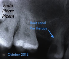 Root canal on calcified maxillary first premolar pre-therapy. Advanced Endodontics case number 525214-1