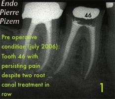 Performing root canal revision procedure