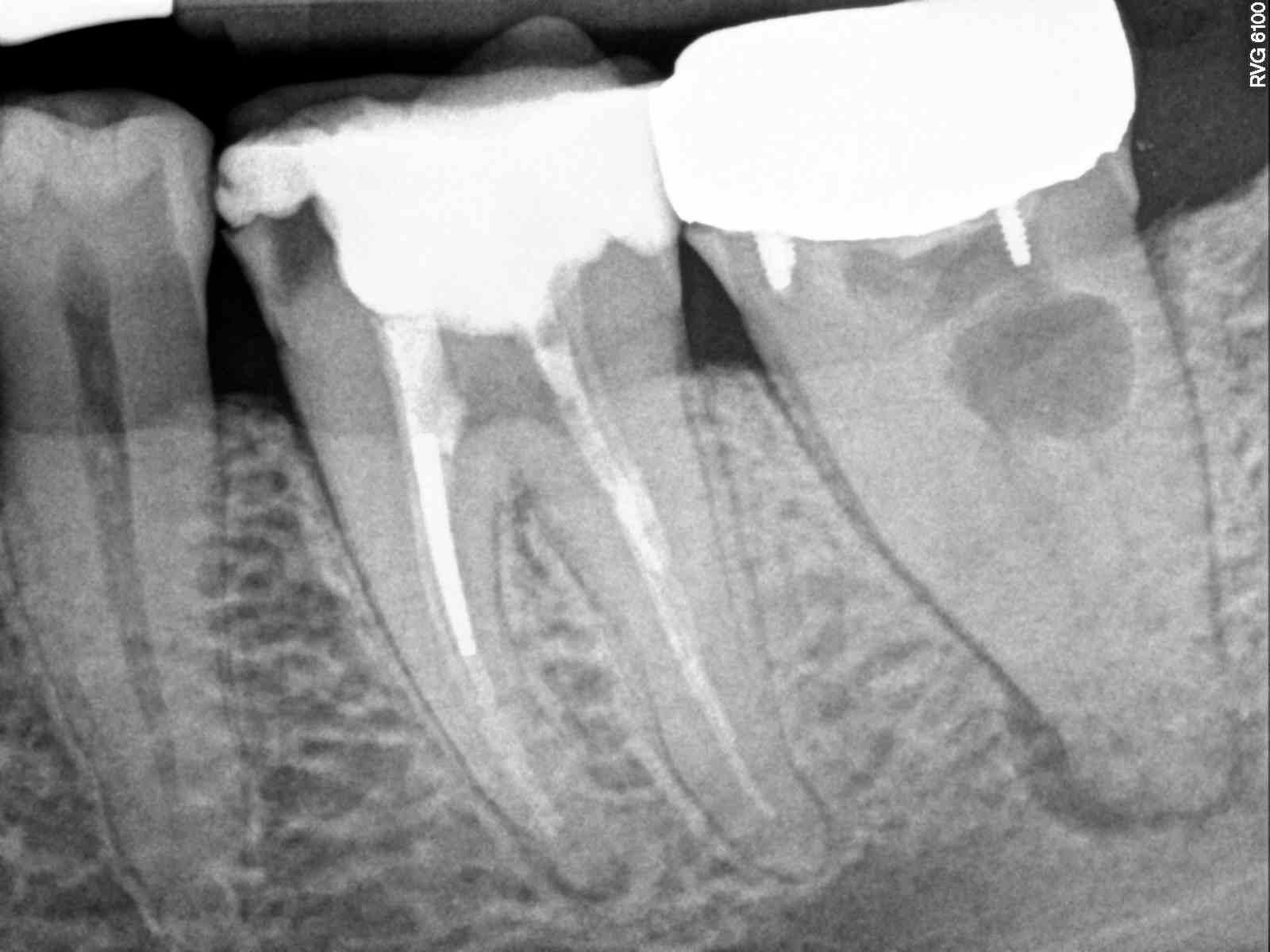 Preserving teeth, pre-operative condition