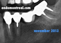 3.7 Root Canal Treatment Post operative