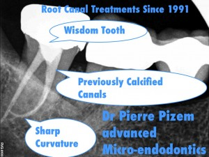 Advanced Root Canal Procedure on a Tooth Presenting with a severe Root Canal Curvature