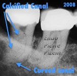 calcification, canal obliteration