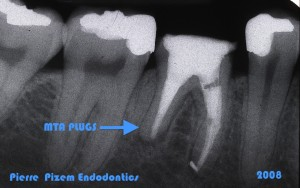 Dental Operative Microscope and Retreatment, Orthograde MTA plugs and root repairs, Root Canal Treatment Per-Therapy (3)