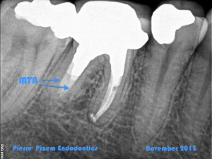 Dental Operative Microscope and Retreatment, Orthograde MTA plugs and root repairs, Root Canal Treatment Post-Therapy